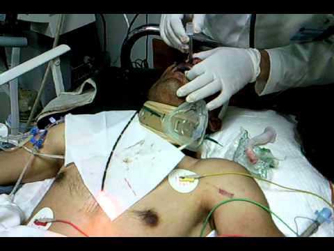 Flexible Fiberoptic Laryngoscopic Intubation in Surgical ICU (Intensive Care Unit)
