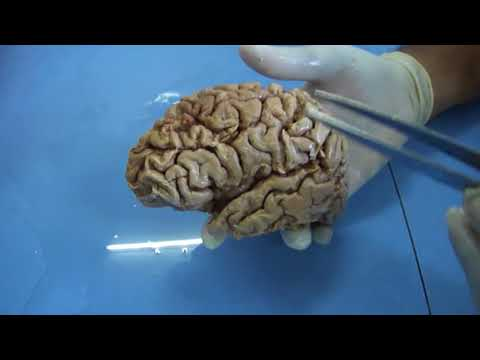 Cerebrum - Ojvensha elearning Resources: Neuroanatomy Lab regarding Sulci, Gyri and Areas of Cerebrum on dead body brain specimens explained by Dr.B.B.Gosai http://elea...