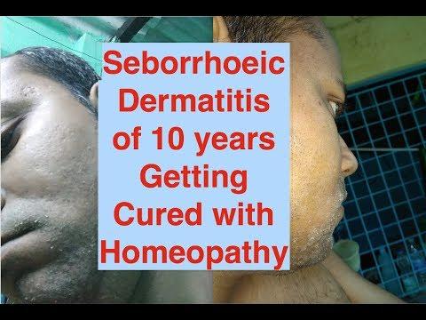 Seborrhoeic Dermatitis from 10 years getting almost cured