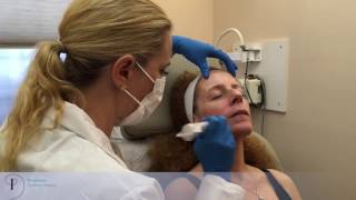 Eclipse MicroPen Stem Cells and PRP
