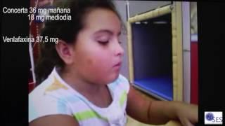 Caso Clinico de narcolepsia en niña