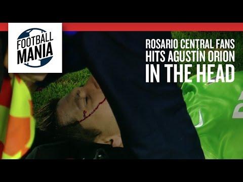 Goalkeeper struck by rock in Argentina