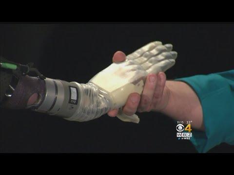 العرب اليوم - شاهد: ابتكار ذراع اصطناعي كامل يتحرك مع إشارات العضلات