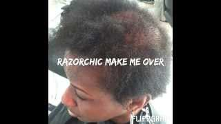 Balding Hair Transformed by Razor Chic of Atlanta