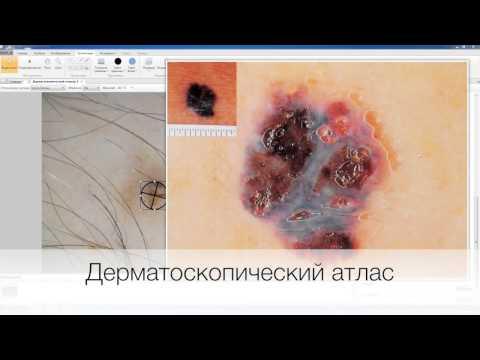Vision Derma® — Цифровая дерматоскопия