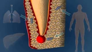 Wie Und Wieso Entsteht Eine Kiefer- / Zahnzyste