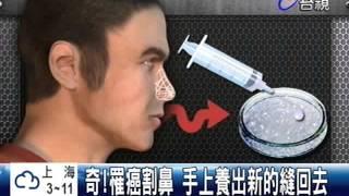 奇!罹癌割鼻手上養出新的縫回去