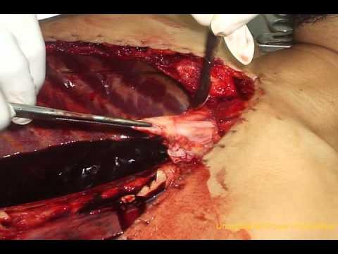 embalming -