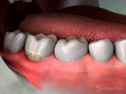 Dentist in Roseville | Oral Surgery | Wisdom Teeth | Extraction