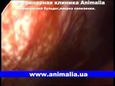 Диагностическая лапароскопия,некроз селезенки TV