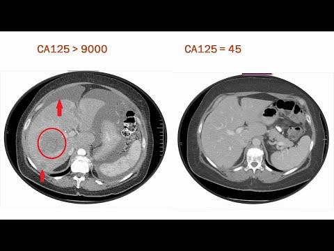 CA-125, CEA, CA 19.9 कैंसर के खून जांच समझें - DM(AIIMS) - कैंसर ब्लड टेस्ट इन हिंदी 2020
