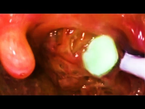 Tonsil Stones — The Facts