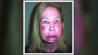 Hereditary Angioedema - Health Alert - NAPS-TV