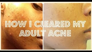 Hey guys! so in this video i will be sharing with you all something that is really sensitive to me and that is my struggle with acne/adult acne. This video is sort of an introduction to my acne woes so that you all have some context on where I started and the progress I have achieved due spironolactone. I have been taking it since July 2015 and began to see results withing 2 months. I will do a future video detailing all the specifics about it along with the adverse effects and week by week pictures of the progress I had while taking it so stay tuned for that.❤Let's Connect ❤Instagram  - @1000wordstosaySnapChat - @L000wordstosay Facebook - @JazzybeeTV