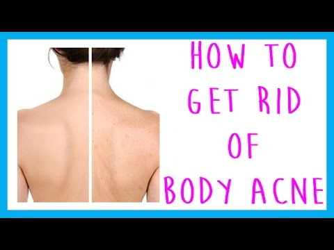how to get rid or chest acne