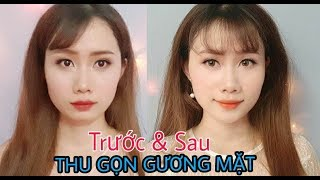Review liệu trình nhỏ mặt với liệu pháp Golki – Beauty blogger NhungLeong