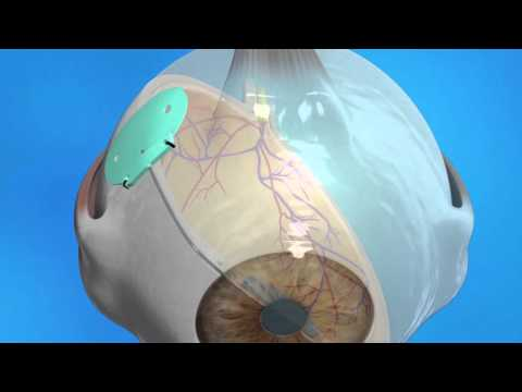 Glaucoma Drainage Implant