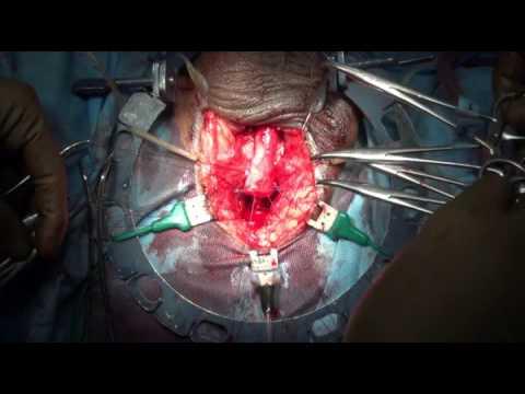 Urethroplasty End to end anastamosis & closure