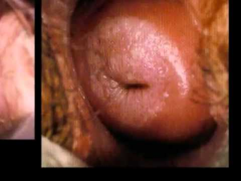 HPV and Genital Warts Part 2 Clinical Manifestation