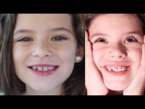 Emma - Follow us! http://www.twitter.com/kittiesmamayt Another awesome family vlog! This week ... Emma gets braces and we paint the office. OUR LINKS: http://www.tw...