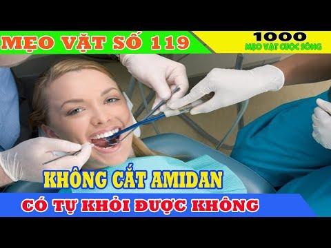 [Mẹo Vặt Số 119] Không cắt amidan tự khỏi được không - Cách chữa viêm amidan khỏi 100% không cần cắt