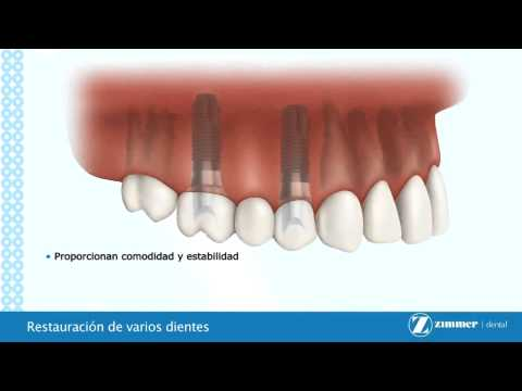 Educacion al paciente sobre implantes dentales
