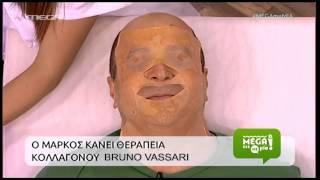 ELXIS MEDICAL – SPA – MEGA CHANNEL: BRUNO VASSARI – PLATINUM – ΝΗΜΑΤΑ PDO