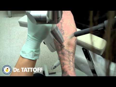 video que muestra como le borran un tatuaje a una persona
