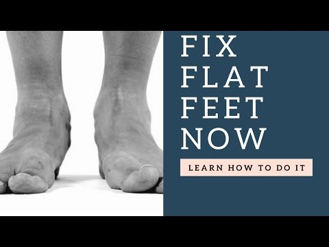 How To FIX Flat Feet With These Corrective Stretches & Strengthening Exercises