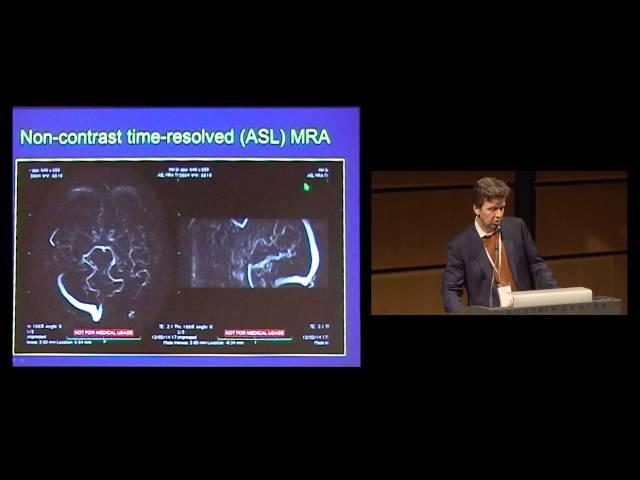 Latest generation 3T MRI