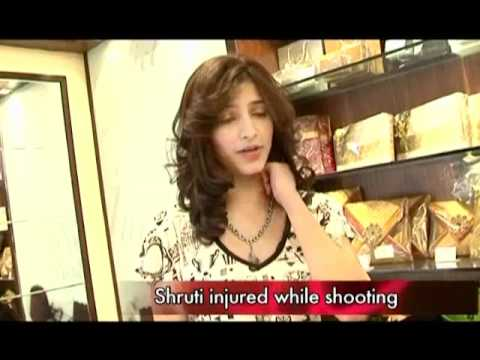 Shruti injures herself on the sets OF 7am Arivu