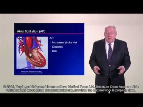 Rivaroxaban for stroke prevention in atrial fibrillation - Video abstract [30159]