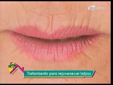 Tratamiento para rejuvenecer labios