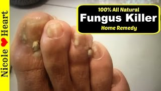 Video Home Remedy for Toenail Fungus & Athlete's Foot | Natural Fungus Killer by Nicoles Heart MP3, 3GP, MP4, WEBM, AVI, FLV September 2019