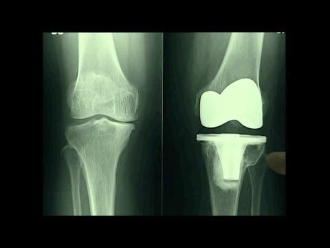 Protesi totale di ginocchio: video dell'intervento