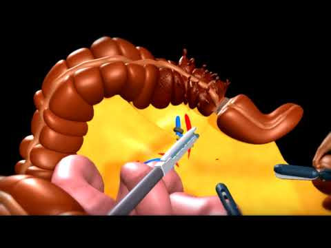 Colon Surgery - describes problems with diverticulitis attacks. surgery to remove portion of colon affected is shown.