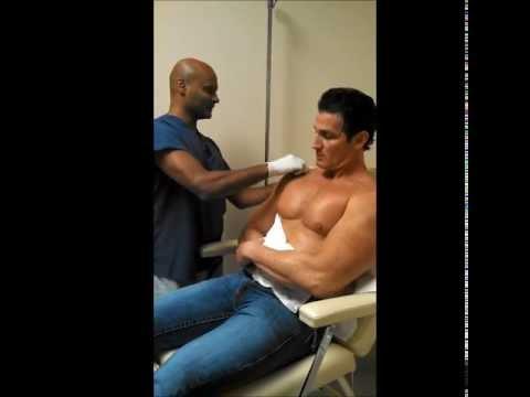 Shoulder Injury Healed with Ozone