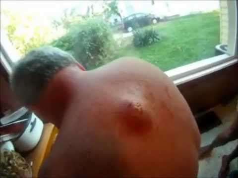 Huge Cyst Popping on man's Back Groos Toothpaste Puss