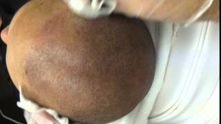 Results of having a Scalp Micropigmentation treatment by Tino Barbone at SMC