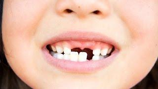 Benturan ringan sampai keras pada saat kecelakaan  merupakan salah satu penyebab utama  gigi patah. Kecelakaan yang terjadi  bisa diakibatkan oleh olahraga, kecelakaan lalu lintas, aktivitas  luar ruangan seperti bersepeda, dan juga ada penyebab lain yang bukan termasuk kecelakaan seperti tindakan kekerasan. Usia , gender dan riwayat terjadinya  kecelakaan adalah faktor terbesarnya risiko gigi patah dan  lebih banyak dialami oleh laki-laki berdasarkan laporan kasus. Pada anak-anak hal ini juga sering kita jumpai dalam kehidupan sehari- hari, dikarenakan  kegiatan mereka dan pola tingkah laku.Gigi yang tersering patah adalah gigi depan atas (first incisive dan second incisive) dan  kadang melibatkan  lebih dari satu gigi.  Berdasarkan anatomi gigi, bagian dari gigi yang patah dapat meliputi email, dentin, pulpa (kamar syaraf) dan akar.Bagian yang patah bisa hanya mengenai satu bagian saja, misalnya pada email , tetapi bisa juga meliputi semua bagian dari email sampai ke akar. Baik rasa sakit yang ditimbulkan sampai tipe perawatan yang akan dilakukan oleh dokter gigi bergantung dari  bagian gigi yang patah. gigi patahBeberapa hal yang dapat Anda lakukan sebagai pertolongan pertama apabila hal ini terjadi adalah:*Bersihkan dan bilas mulut  dengan air hangat untuk menghilangkan kotoran,*Kompres dengan es di daerah sekitar gigi yang patah untuk mengurangi rasa sakit dan pembengkakan*Tekan dengan menggunakan kain kasa pada daerah yang mengalami perdarahan.*Jika memungkinkan, segera ke dokter gigi dengan membawa patahan gigi. Karena dalam beberapa kasus,  patahan gigi itu masih dapat diperbaiki.