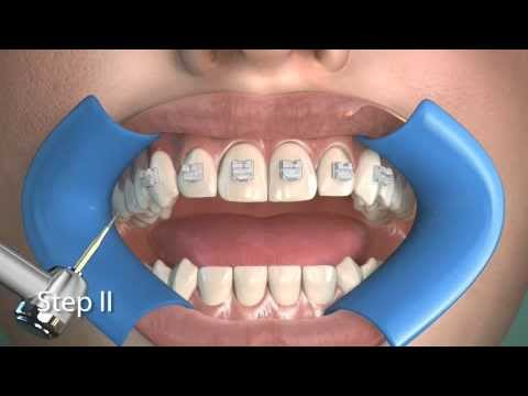 Ortodontik Debonding ( Diş Tellerinin Çıkarılması)