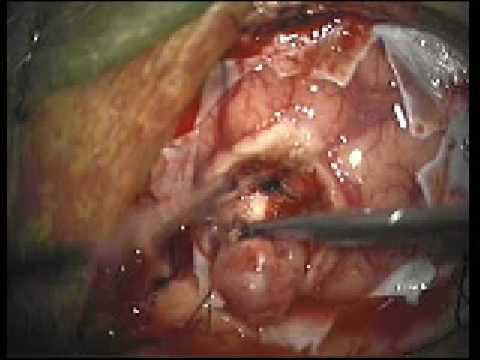 Brain Tumor Resection