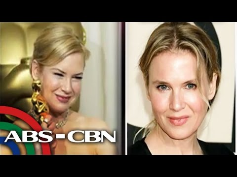 NEW - Oscar-winning actress Renee Zellweger answers the unexpected reaction of the public about her huge transformation. Subscribe to the ABS-CBN News channel! - http://bit.ly/TheABSCBNNews Watch...