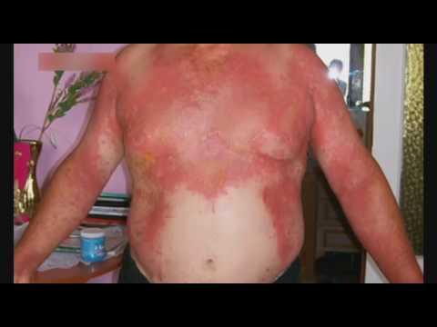 Чем лечить ожоги от борщевика в домашних условиях 105
