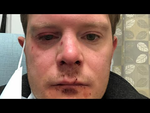 Actor Punched as He Steps Off Subway