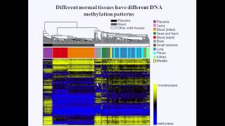 Environmental Exposures, Childhood Leukemia&the Role Of DNA Methylation