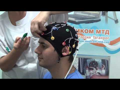 Комплект ЭЭГ-электродов Энцефалан-КЭ для видео ЭЭГ мониторинга, ЭЭГ-холтера
