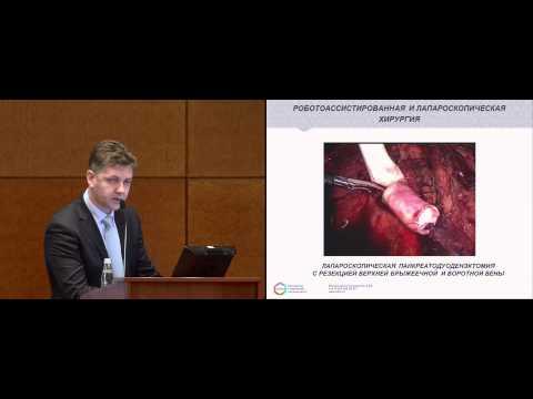 Хирургическое лечение рака поджелудочной железы. Роботоассистированная и лапароскопическая хирургия