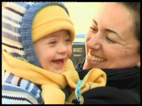 Ver vídeoSíndrome de Down: Área socioafectiva de 6 a 18 años