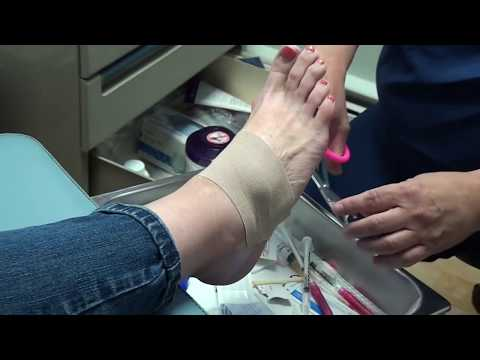 Ganglion Cyst on a Foot